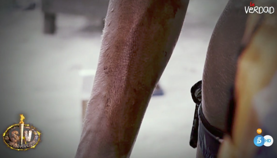 heridas-sofia-suescun.jpg