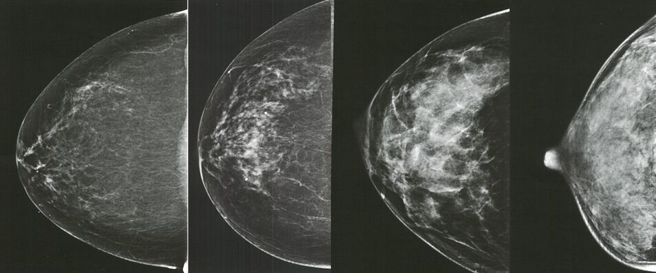 importancia de saber sobre el cancer de mama