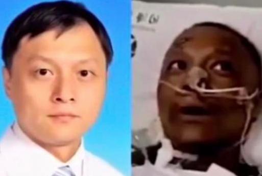 Muere médico de Wuhan cuya piel se ennegreció por el coronavirus
