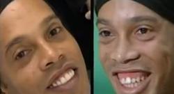 El antes y el después en la sonrisa de Ronaldinho. | Globo TV