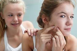 Aunque el acné se asocia a adolescentes, cada vez afecta a más adultos. | Corbis