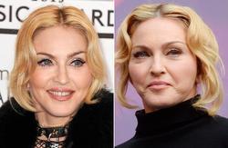 Madonna antes y después | Cordon Press