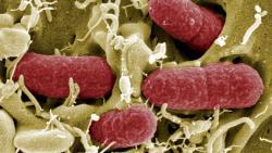 Imagen de la bacteria provocada por los pepinos. | EFE