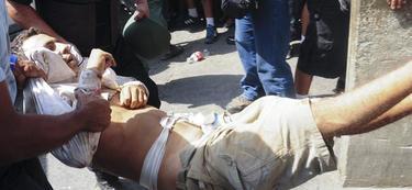Uno de los heridos de la cárcel de Uribana, llegando al hospital de Barquisimeto | EFE